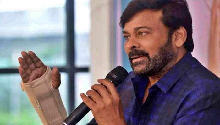 Megastar Chiranjeevi: చిరంజీవి కుడి చేతికి సర్జరీ.. గాడ్ ఫాదర్ షూటింగ్కి బ్రేక్!
